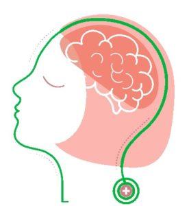 CBD et système nerveux pour la sclérose ne plaques